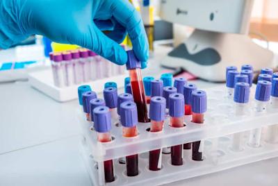 Manfaat Cek Lab yang Penting untuk Anda Ketahui