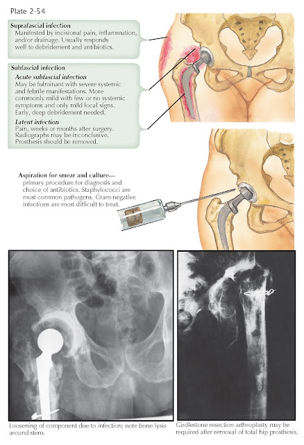 TOTAL HIP REPLACEMENT: INFECTION