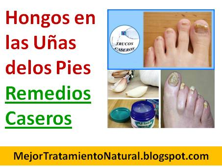Las gotas del hongo de las uñas en los pies más bueno