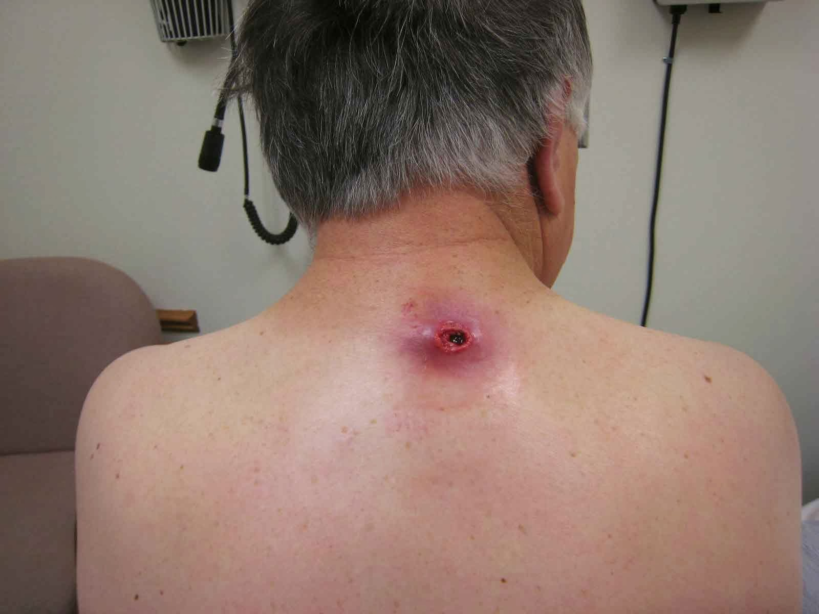 Sebaceous Cyst: Type, Causes, Diagnosis & Treatment | Health Digest