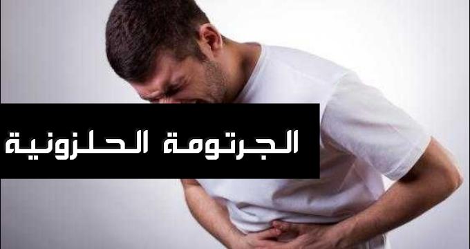 ماهي الجرثومة الحلزونية وأعراضها وخطورتها على صحة الإنسان