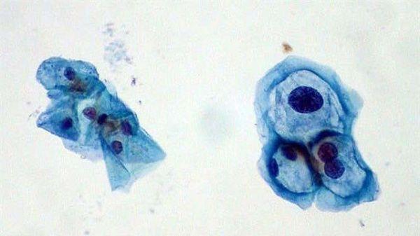VPH aumenta riesgo de cáncer en mujeres
