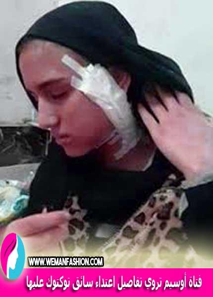 فتاة أوسيم تروي تفاصيل اعتداء سائق توكتوك عليها