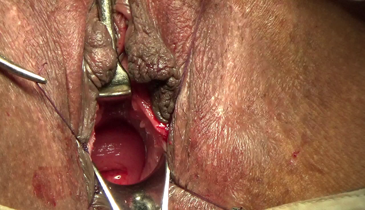 partial-band-of-tissue-at-vaginal-opening-mature-golden-breasts-video