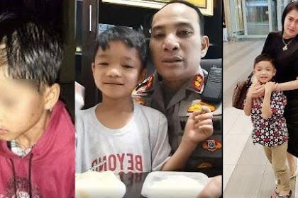 Bocah Ini Dulu Viral Dibuang Ibu dengan Tubuh Penuh Luka, Kini Jadi Anak Kapolres, Ganteng & Bahagia