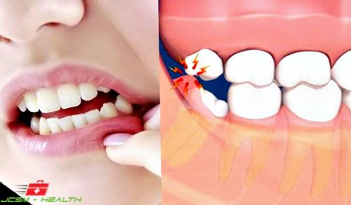 to treat swollen gums, fast, natural, Skeleton