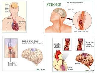 3 Obat stroke herbal yang wajib dicoba