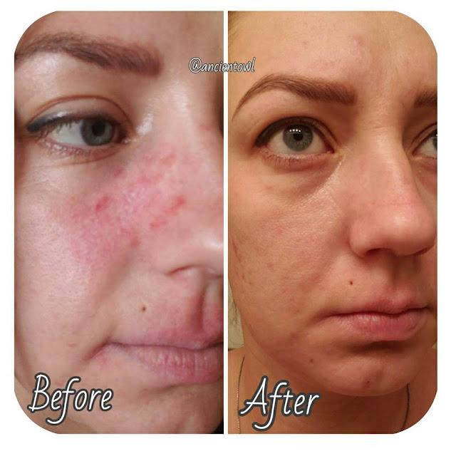 Masques naturels pour éliminer les points noirs et autres imperfections de la peau