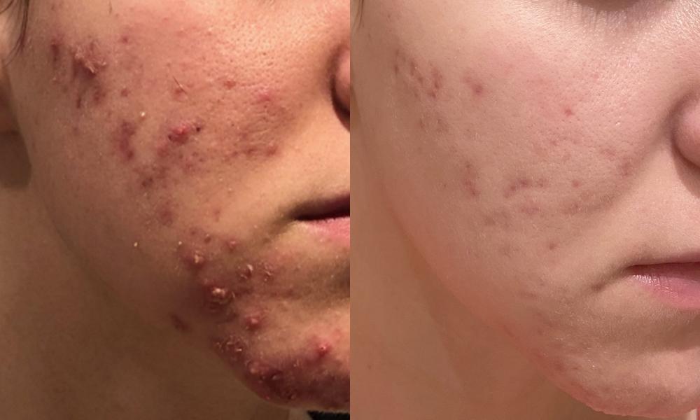 dermokonsultacje kosmetolog online trądzik porady skórne porady ewaszalkowska.com