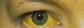 Demam Kuning (Yellow Fever)