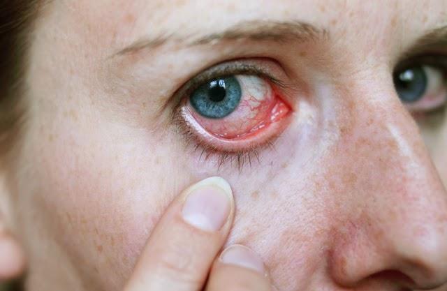 Glaucoma: una enfermedad para no perder de vista