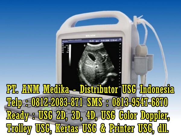 Harga Alat USG 4 D Harga-usg-portable-mindray