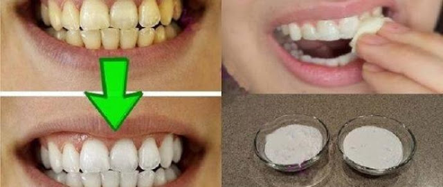 Resultado garantido! Clareie seus dentes em menos de 3 minutos passo a passo em vídeo
