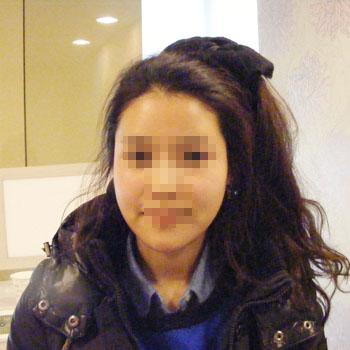 짱이뻐! - She Looked Like a Skull Before Korean Best Face Contouring Surgery