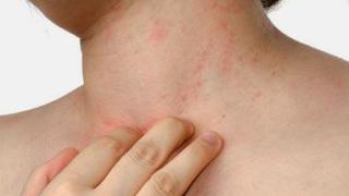 Akibat Alergi yang Harus Diperhatikan Setiap Orang