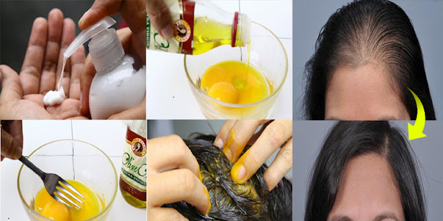 Hair DIY - How To Stop Hair Lose By Using 2 Ingredients