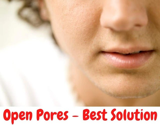 How to Get Rid of Open Pores on Nose Naturally   Best Remedies of 2021