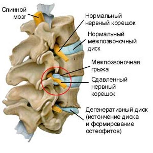 Советы врачей из клиники лечения позвоночника в Одессе