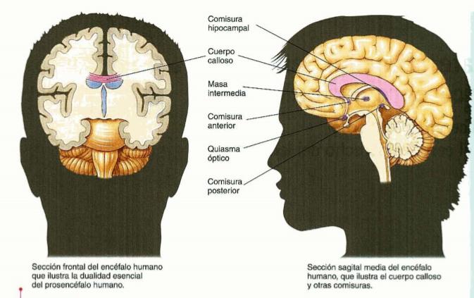 Portafolio: Lateralización, lenguaje y cerebro escindido