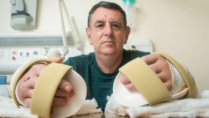 Chris King recibió el primer trasplante doble de manos en Inglaterra.