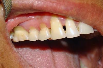 mòn chân răng có trám được không -2