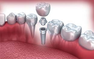 زراعة اسنان بالتقسيط بالرياض