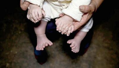 Μωρό γεννήθηκε με 31 δάχτυλα στην Κίνα