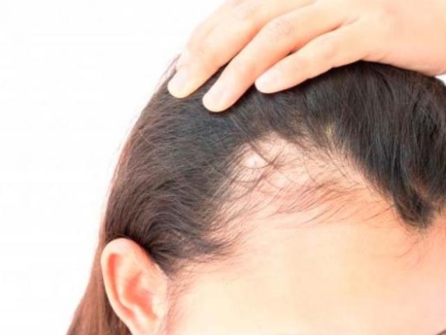 مخاطر و أضرار زراعة الشعر