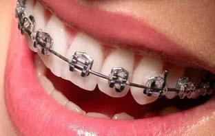 اسعار تقويم الاسنان في مكه
