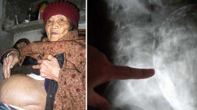 Kisah Nenek 92 Tahun Hamil Selama 60 Tahun, Saat Melahirkan Kondisi Bayinya Sungguh Mengenaskan