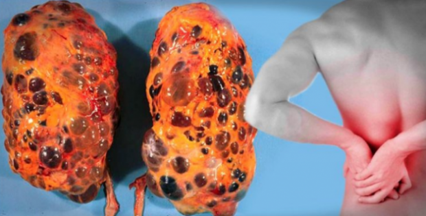 HEALTH ALERT: Bad Habits That Harm Your Kidneys  That You Might Be Doing! Must Read!
