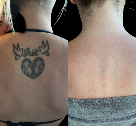 Laserless tattoo removal, how to Laserless tattoo removal, tips tattoo removal