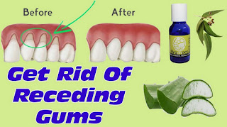 Some of the natural remedies for gum disease picture