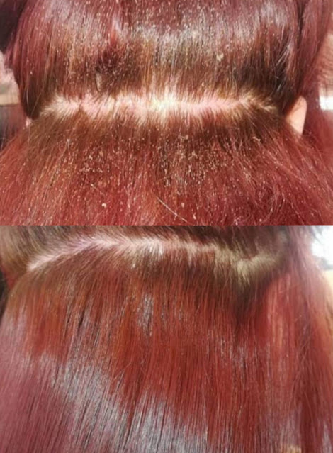 3 remèdes maison contre l'invasion des poux et des lentes dans les cheveux