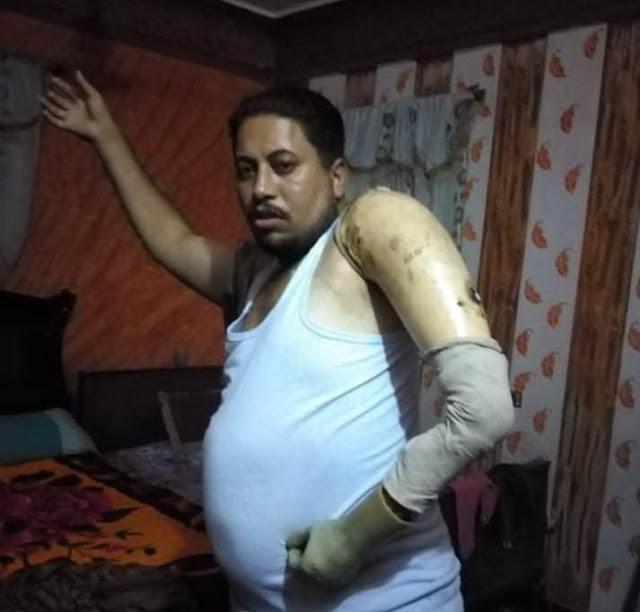 بالصور.. مواطن مصاب بقطع ذراعه الايسر يناشد محافظ سوهاج بمنحه كشك أو أى مصدر رزق