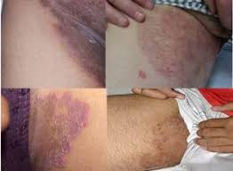 Obat Gatal Selangkangan dan Pantat tak Kunjung Sembuh Paling Mujarab