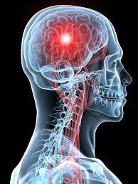 Pengobatan Alami Penyakit Stroke