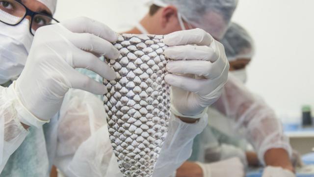 Pele de tilápia é usada em reconstrução vaginal de paciente trans após mudança de sexo