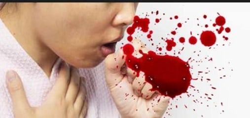Resep Obat Batuk Berdarah Di Apotik Dari Dokter Paling Ampuh