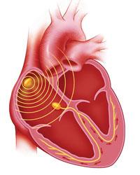 El Blog de CECIL : Sistema de conducción eléctrica del corazón