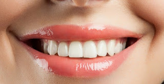 Inilah 4 Langkah Menahan Pertanda Penuaan Pada Gigi