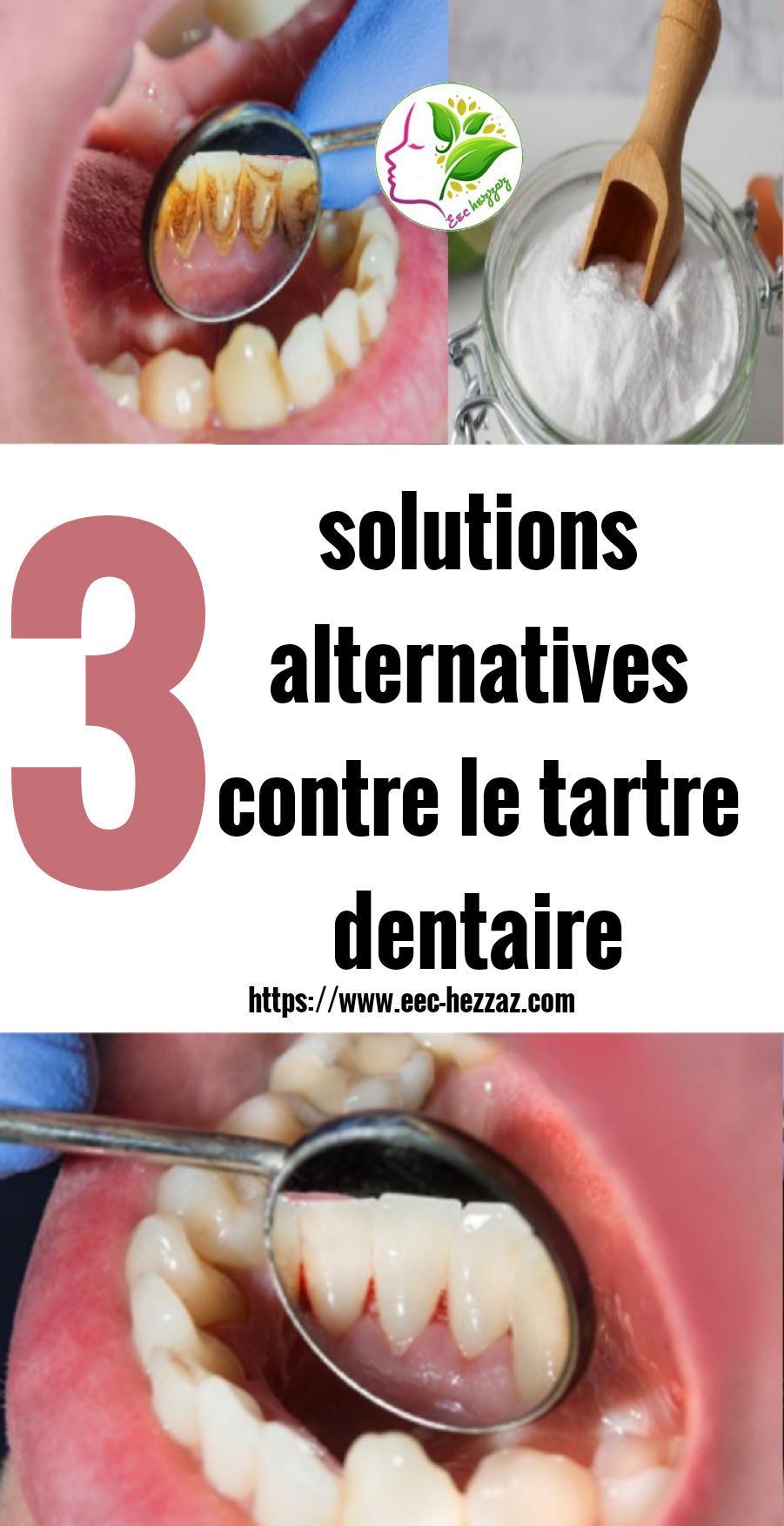 3 solutions alternatives contre le tartre dentaire