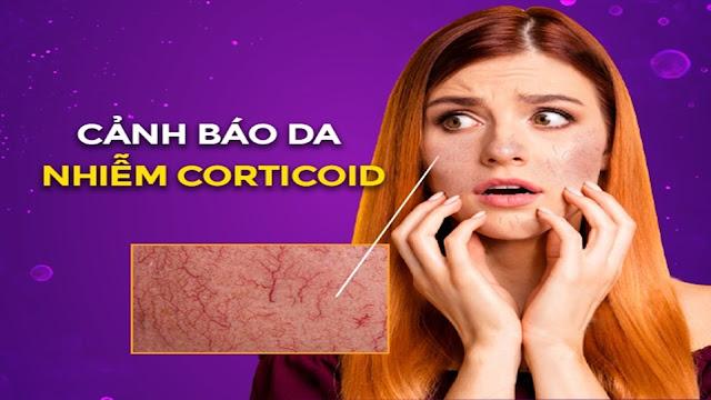 Dấu hiệu da nhiễm corticoid