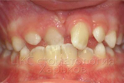наблюдение пациента после удаления сверхкомплектного зуба