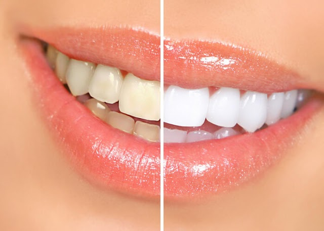 Brighten your smile with dead tooth whitening