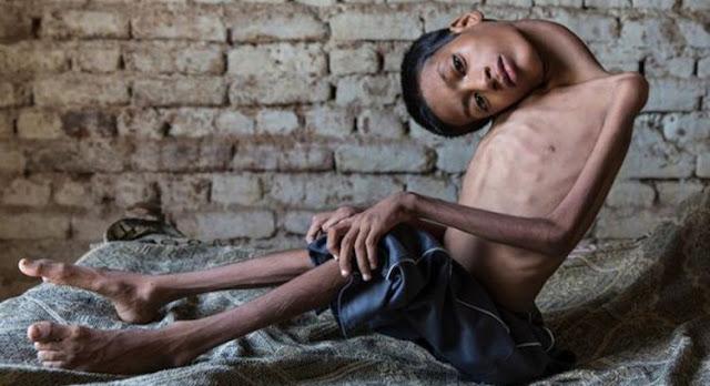 Innalillahi Wainna Ilaihi Roji'un, Remaja Dengan Kepala Tertekuk 180 Derajat Meninggal Setelah Operasi
