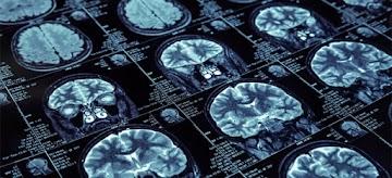 Estudo: Antidepressivos ligados a demência: Trocando uma condição por outra
