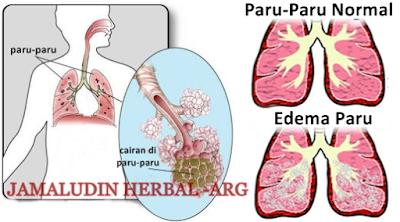 http://tilupuluhherbal.blogspot.co.id/2018/01/obat-untuk-menghilangkan-cairan-di-paru.html
