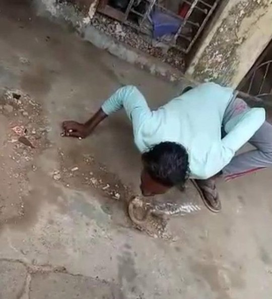 Snake Charmer Bitten By Cobra In The Face When He Tried To Kiss It