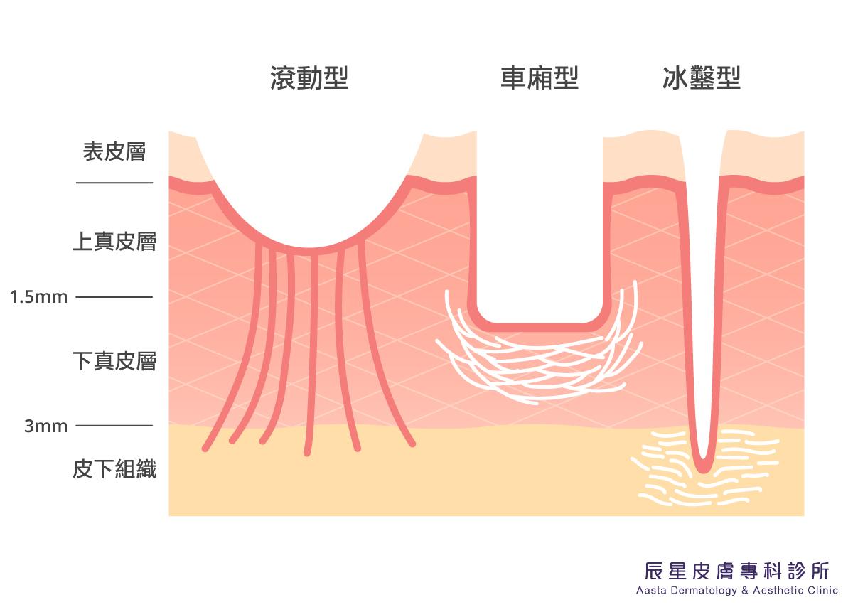 痘疤簡單的可分為三種類型:色素型痘疤、凹疤、凸疤